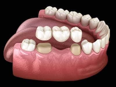 Model of a dental bridge and crown in Garland