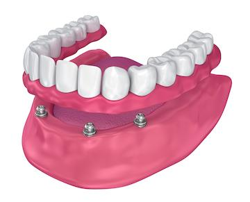 3-D model of full dentures l dentist in garland tx