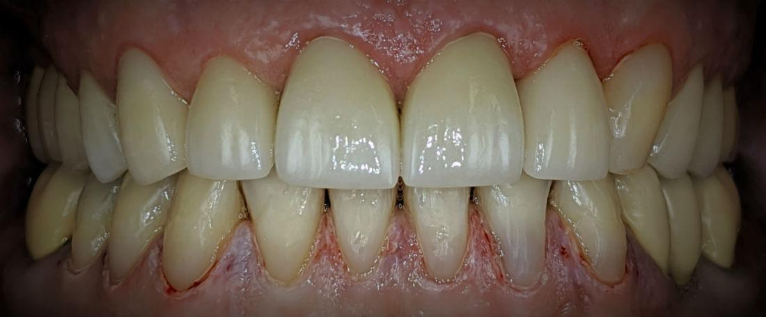 Crown and Tooth Color Filling, Dental Bonding