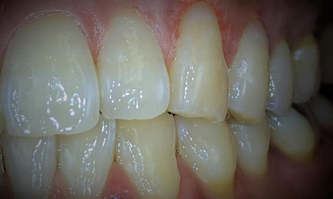 bright teeth after tooth-colored fillings l cosmetic dentist garland tx