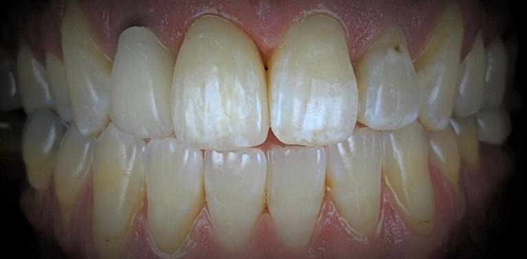 Front-Tooth-Crown-8-After-Image