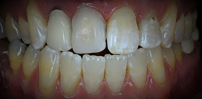 Front-Tooth-Crown-8-Before-Image