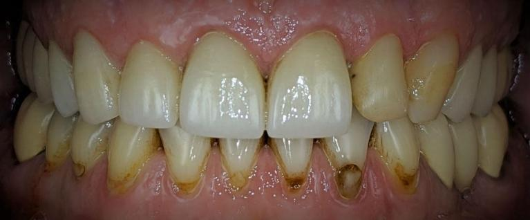 Crown-and-Tooth-Color-Filling-Dental-Bonding-Before-Image