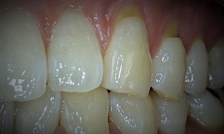 Tooth-Color-Filling-Before-Image