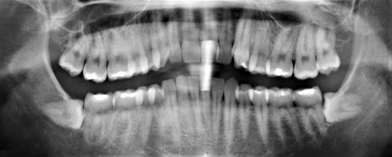 Wisdom-Teeth-Extraction-Before-Image